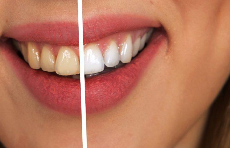 blanchiment_dentaire_natureAZ