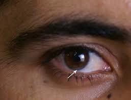 gérotoxon arcus senilis arc senile